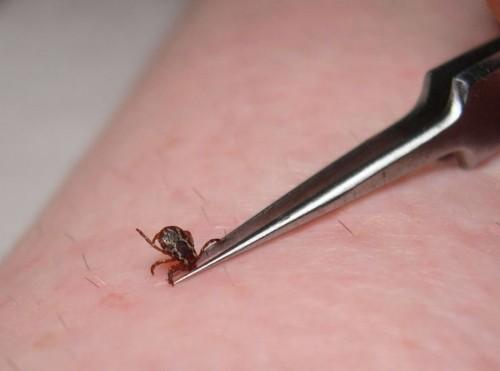 Доврачебная помощь при укусах насекомых