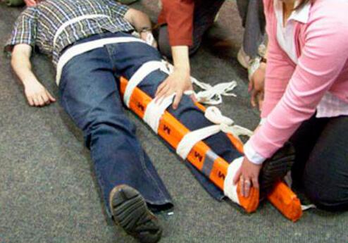 Доврачебная помощь при переломе ноги